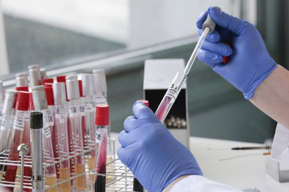 Коронавірус підтвердили за минулу добу у 183 мешканців області